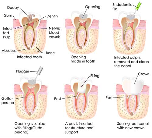 Root Canal Therapy in Kihei
